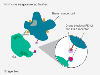 Stage two: Immune response activated: diagram of a T-cell and breast cancer cell, which shows drugs blocking PD-L1 and PD-1 receptor