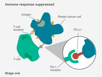 Stage one: Immune response suppressed: diagram of a T-cell, breast cancer cell and antigens.