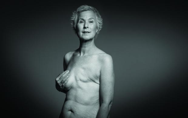 Single mastectomy