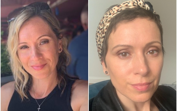 a side-by-side image of Francesca, a white woman, before and after chemotherapy. You can see that she had lost her hair, but it is slowly growing back.