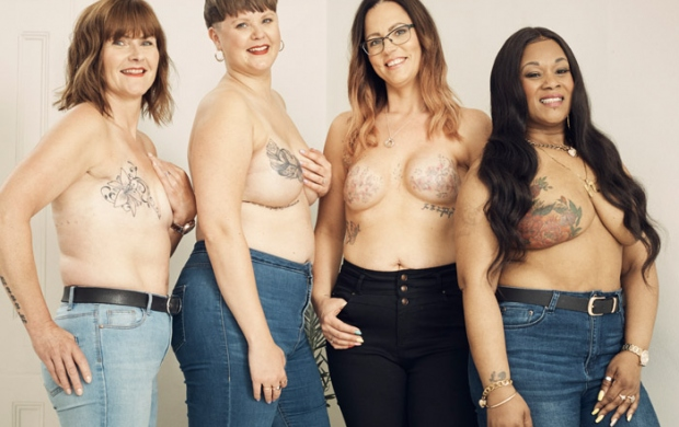 Mastectomy stories with ghd