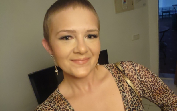 Jen with a shaved head after chemotherapy