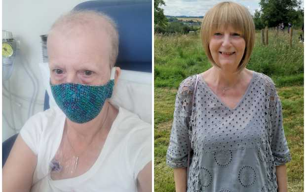 A split image showing Joy during chemotherapy with a shaved head and then later on with blonde hair