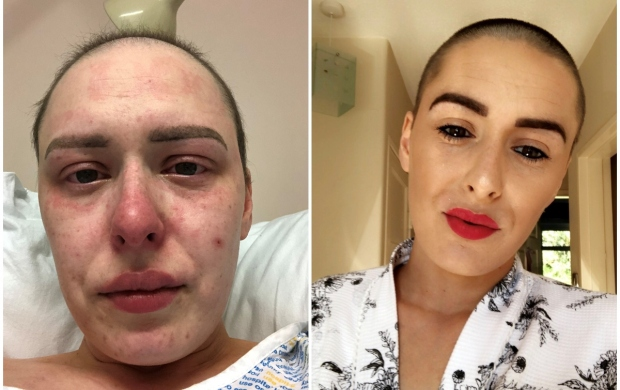 Two images of Nicole, a young woman: first looking tired and unwell in her hospital bed, then happy and bright later on at home