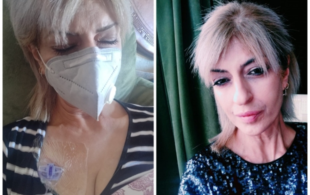 Two images of Sherin. One shows her having chemotherapy in a hospital bed while wearing a mask. The other shows her at home, wearing makeup and a shiny top.