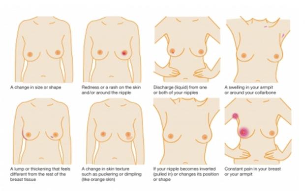 Breast check diagram