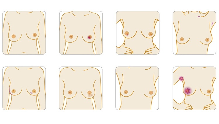 Read about the signs and symptoms of breast cancer