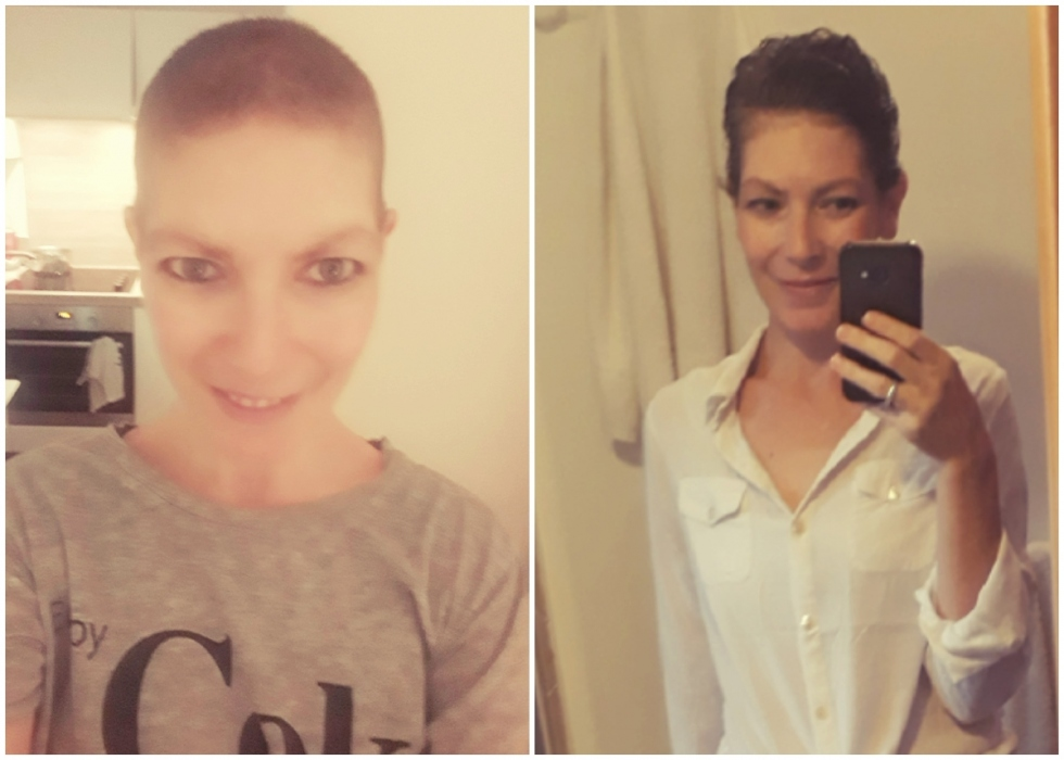 a split image of Aurelie, a slim white woman, showing her during treatment with a shaved head and then after treatment as her hair starts to grow back