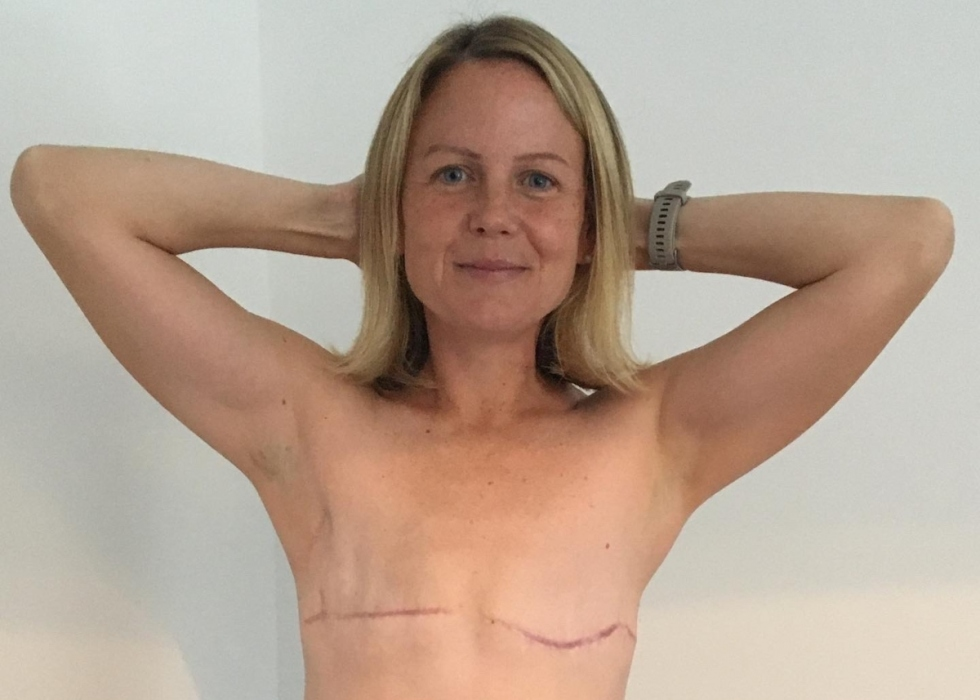 Carly, a slim white woman, smiles with her arms above her head, showing her mastectomy scars and flat chest