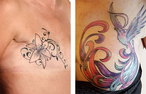 image of mastectomy tattoos