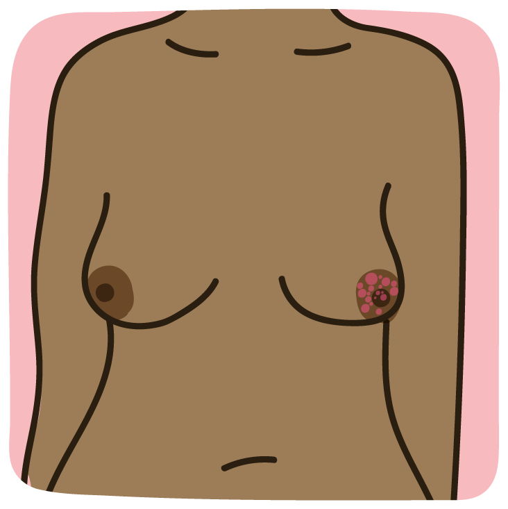 Paget's disease of the nipple infographic