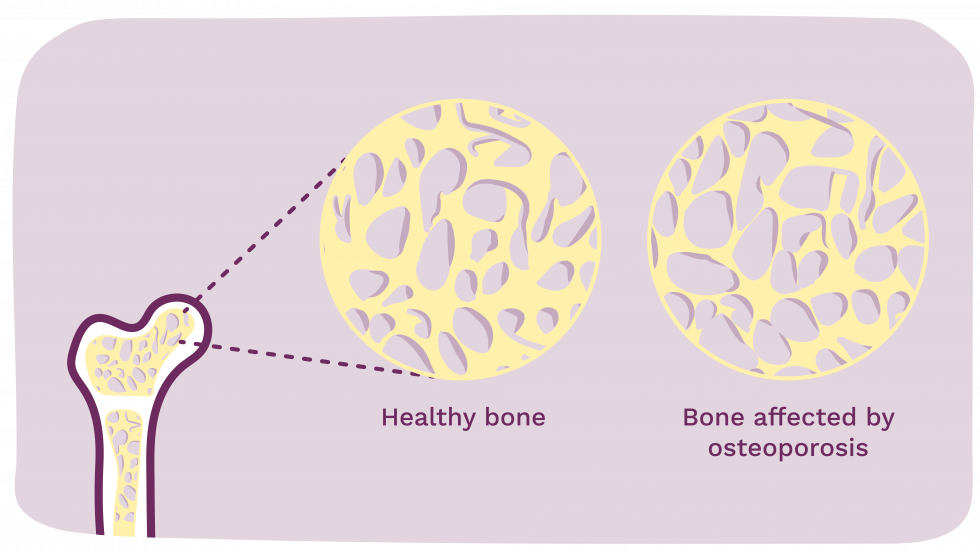 Picture showing the structure of bones