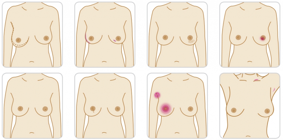 Breast Cancer Signs And Symptoms How Breast Aware Are You