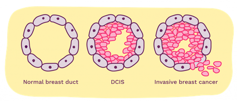 A diagram showing what DCIS looks like on a cellular level