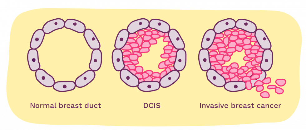 breast ducts