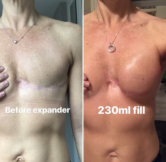 Fiona Maunder breast reconstruction progress