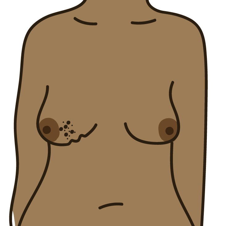 A change to the skin, such as puckering or dimpling
