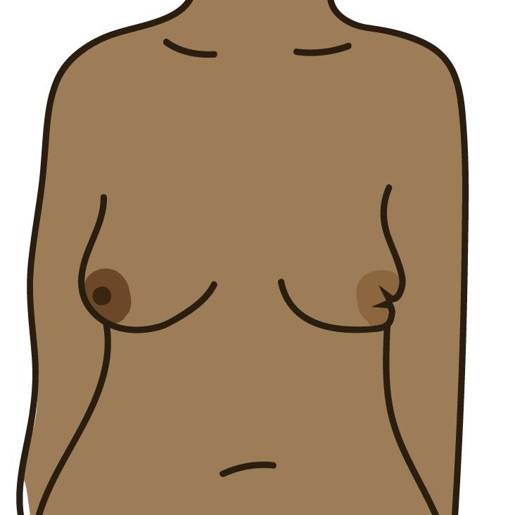 A nipple change