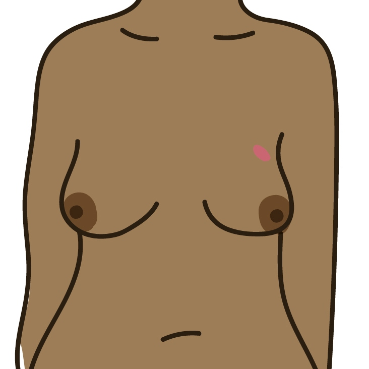A lump or swelling in the breast, upper chest or armpit
