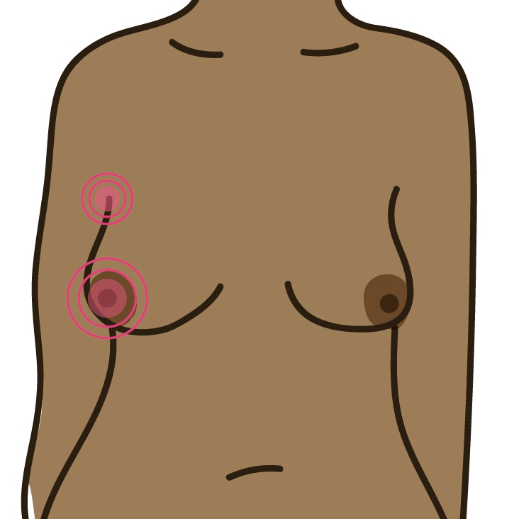 Pain in your breast or armpit