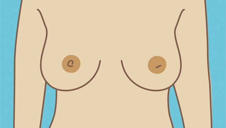 A breast with a nipple that has changed
