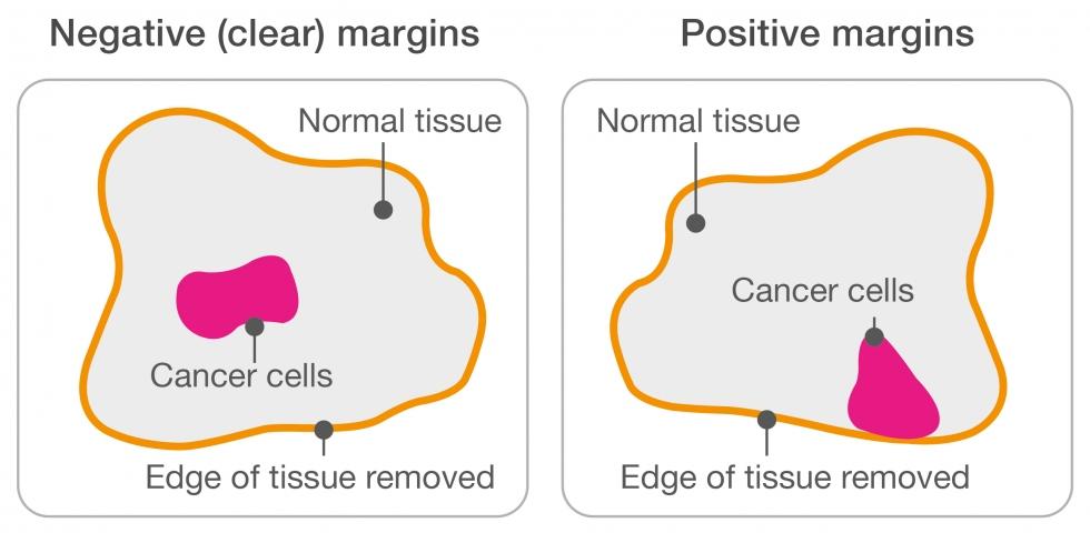 Negative margins and positive margins diagram