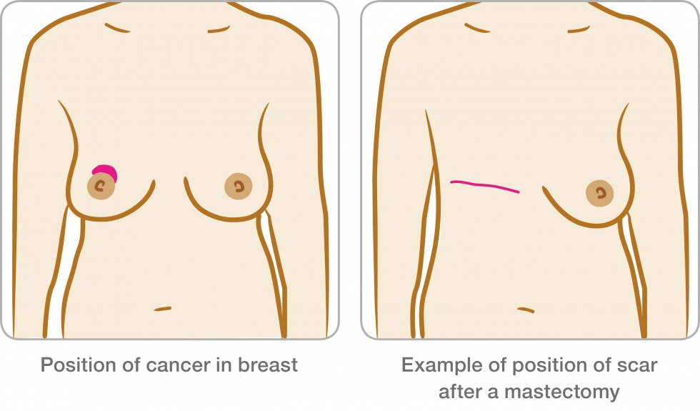 image of mastectomy