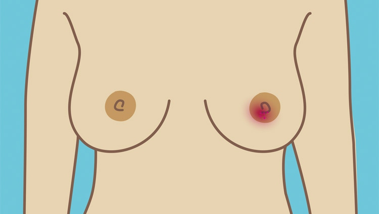 A breast with a rash and crusting around the nipple area