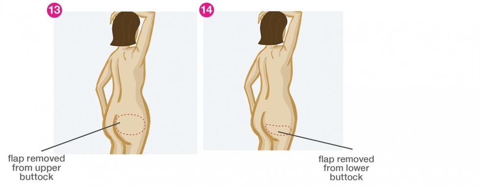 Breast reconstruction - SGAP flap and IGAP flap