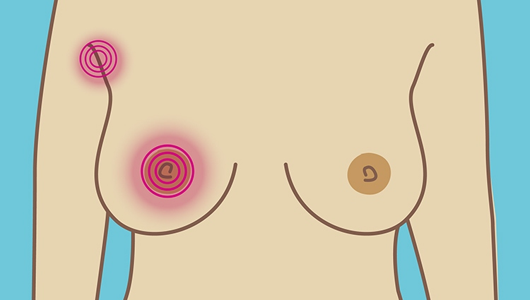 A breast with colour indicating pain