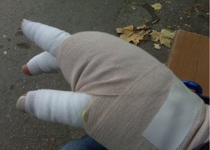 Tamsin's hand needed multi-layered bandaging