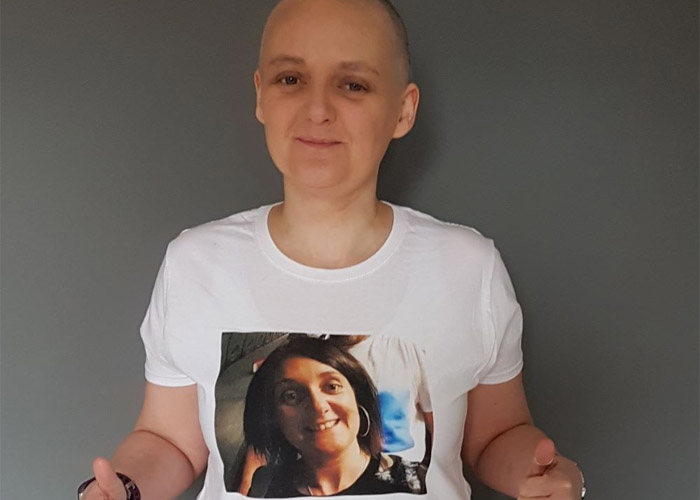 Jo after her hair loss