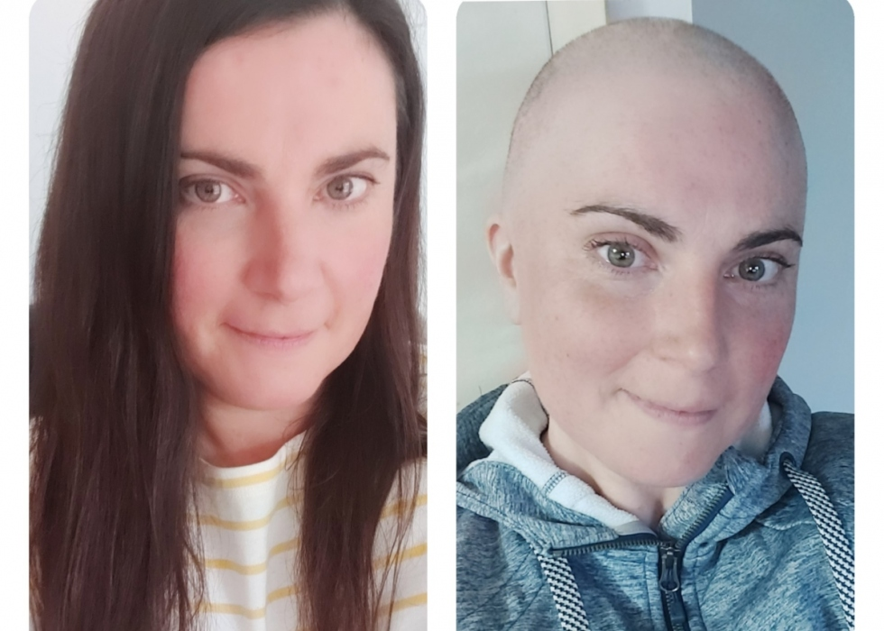 Julie before and after losing her hair