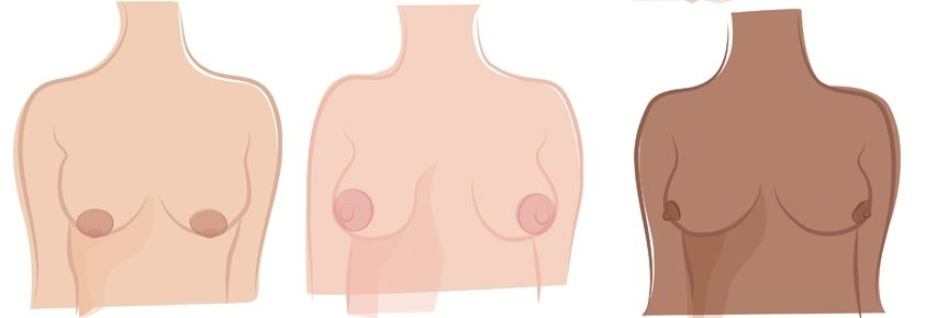 Nipples come in different shapes and sizes