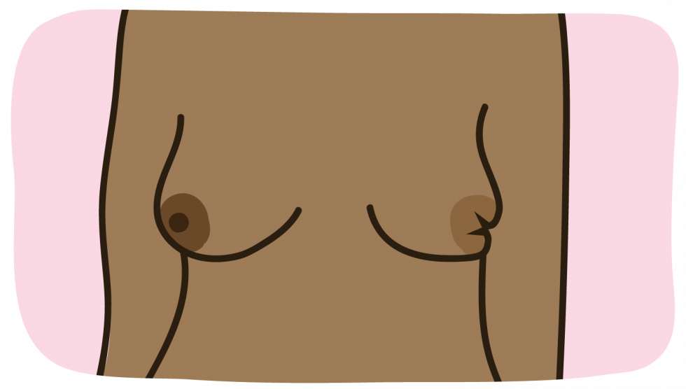 A nipple change, for example it has become pulled in (inverted)