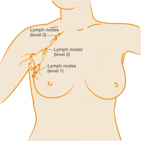 Breast cancer involvement lymph node