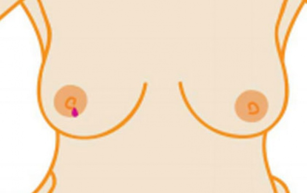 An illustration of a breast displaying a symptom of breast cancer