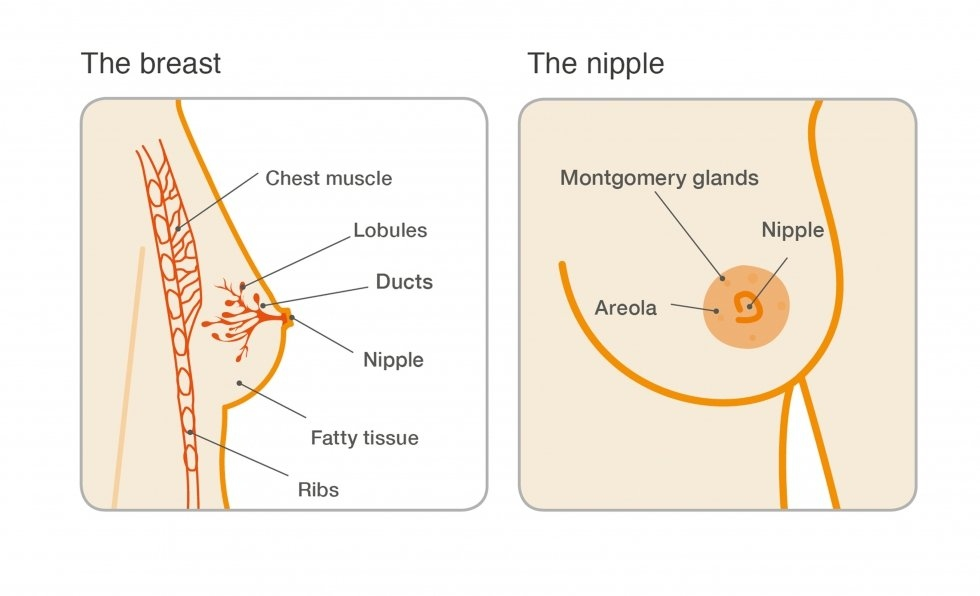 What causes cyst on breast