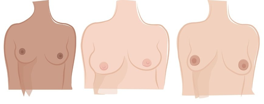 It's normal for breasts to be uneven