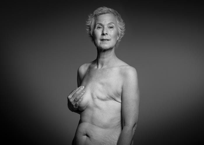 A woman who had a mastectomy faces the camera