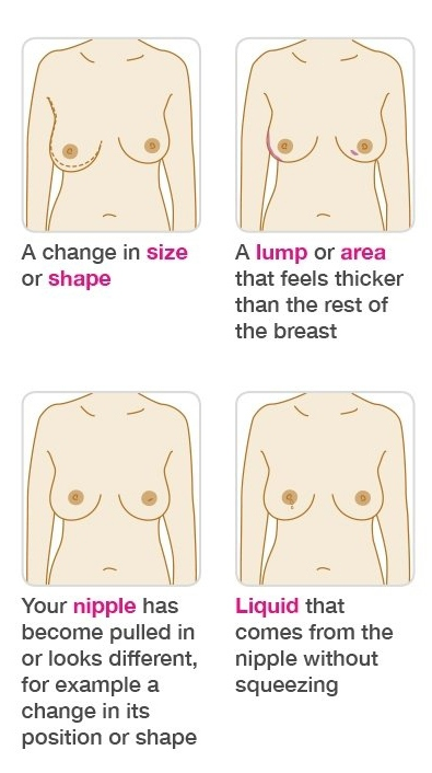 Symptoms include a change in breast shape, a thicker lump, inverted nipple and liquid from the nipple