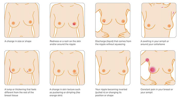 Sintomas ng breast cancer