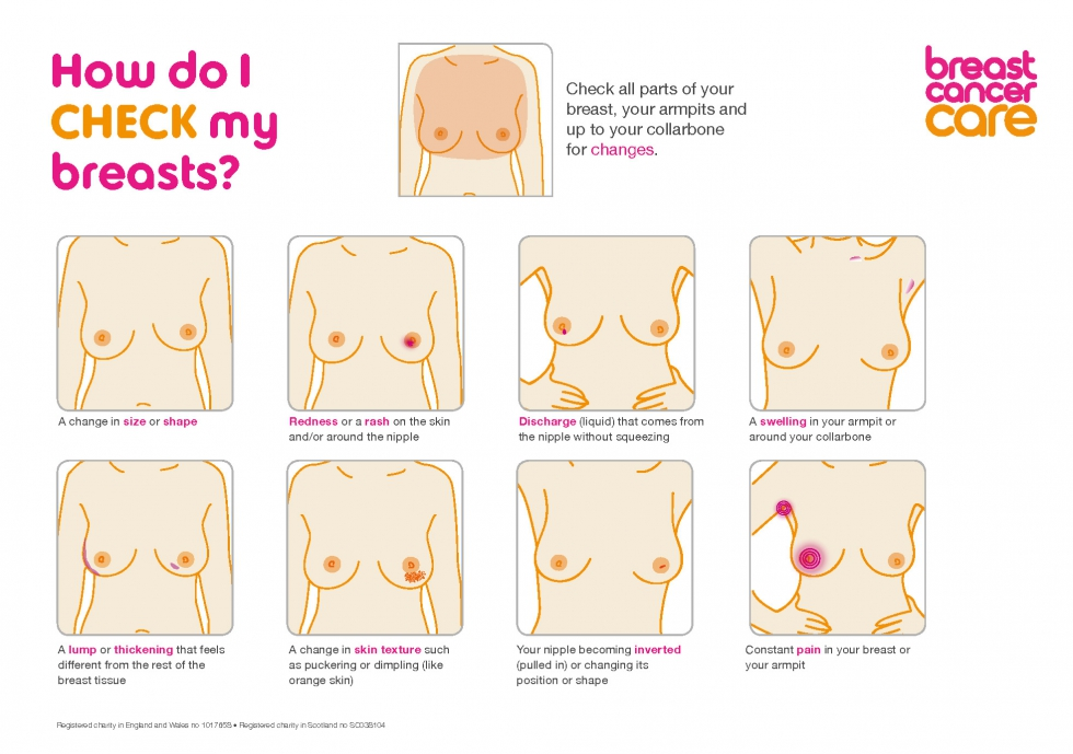signs and symptoms of breast cancer diagram