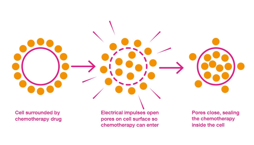 How electrochemotherapy works image