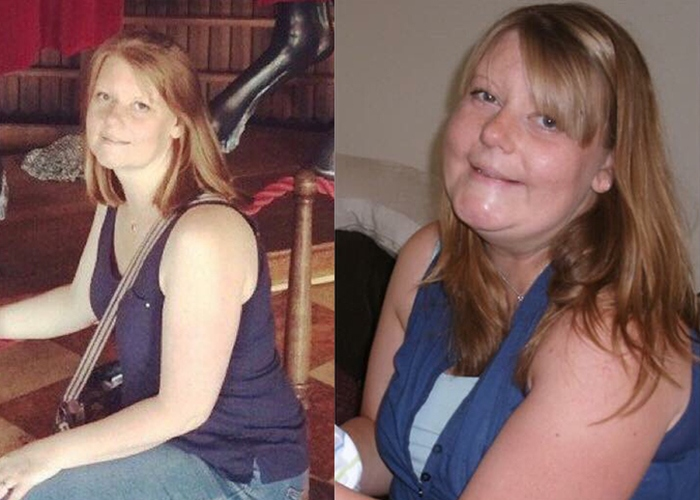 Emma gained weight after breast cancer treatment
