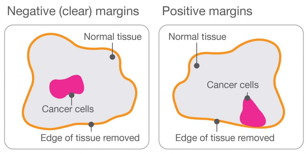 Illustration of positive and negative margins