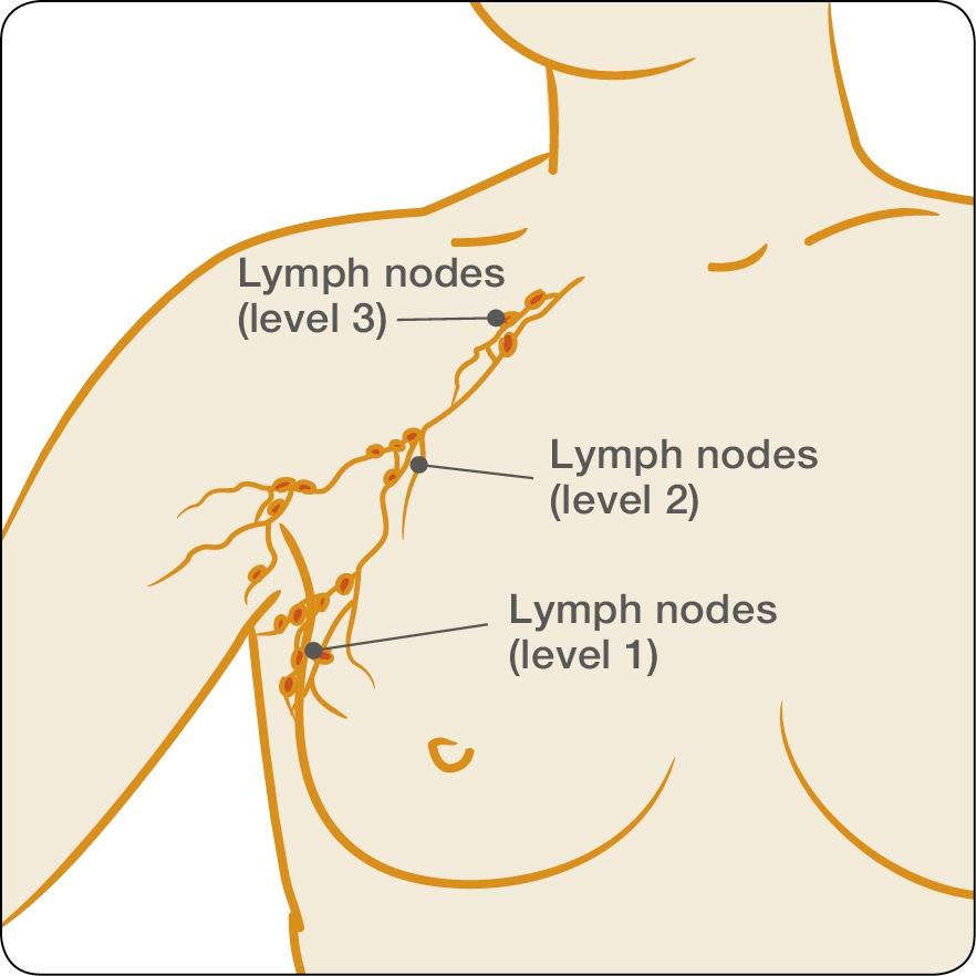 treatments: surgery to the lymph nodes, Cephalic Vein