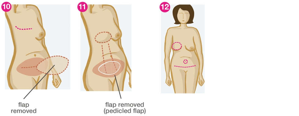 Reconstruction of breast with stomach
