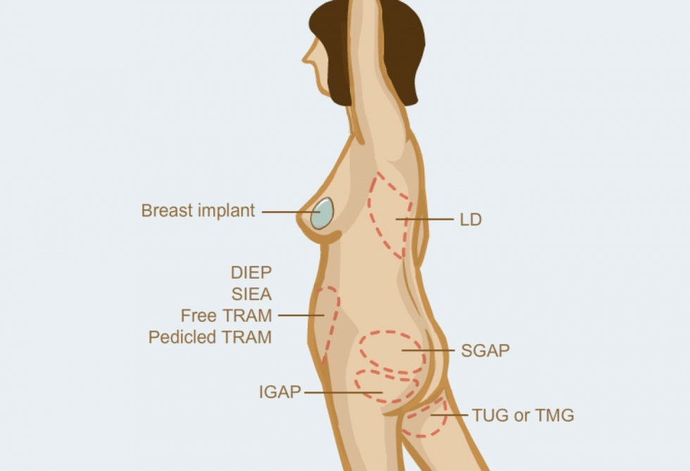 Muscle cramps after breast implats