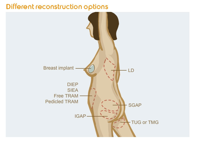 Breast reconstruction in the